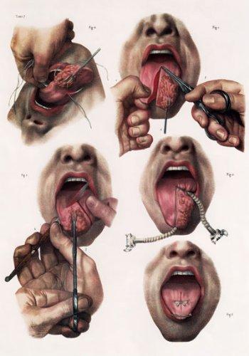 ML06 Vintage 1800\'s Medical Human Tongue Surgery Techniques ...