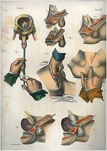 operazione prostata canet