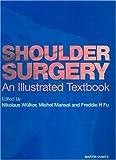 Shoulder Surgery, Nikolaus Wulker and Michel Mansat, 1853175633