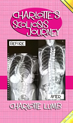 Charlotte's Scoliosis Journey