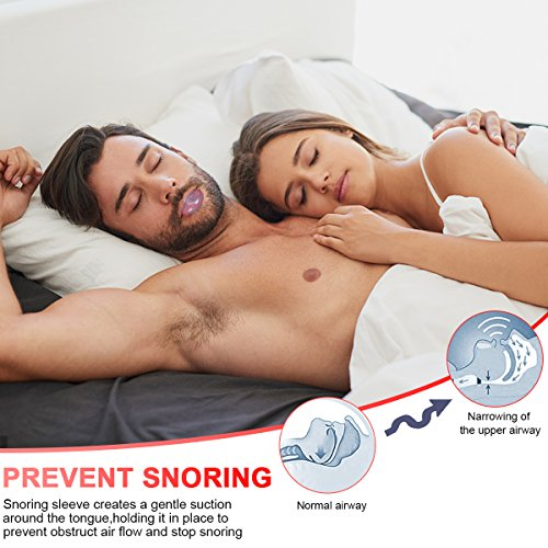 Anti Snoring Devices Tongue, 4 Set Snore Stopper Nose Vents Nasal Dilators Stop Snoring Solution Snoring Mouthpiece Sleep Aid Device Silicone Tongue Retainer for Men Women (Stop snoring Devices) by Usleepy (Image #1)