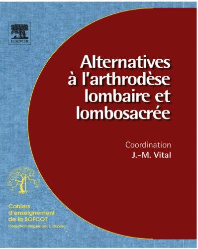 Alternatives à l'arthrodèse lombaire et lombosacrée (n° 96) (French Edition)