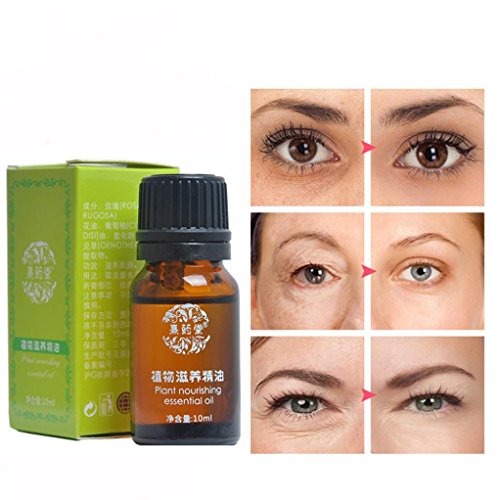 Price comparison product image Eye Essence for Dark Circles Puffiness Wrinkles Bags Most Effective Anti-Aging (Brown)