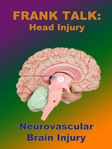 Frank Talk:  Neurovascular Brain - Spects Models