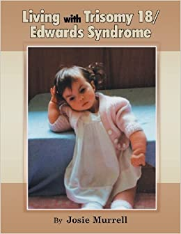 Living with Trisomy 18 / Edwards Syndrome by Josie Murrell (2013-02-21)