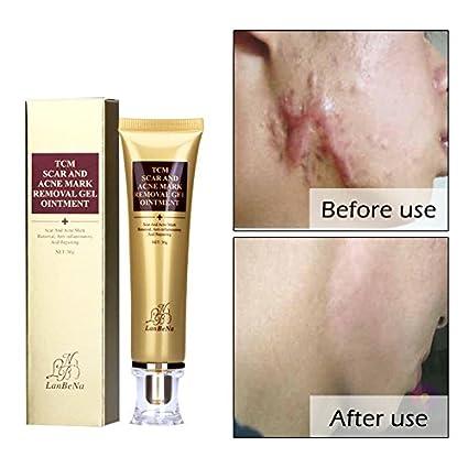 Las quitar acne marcas usar de para que