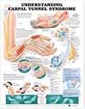 Understanding Carpal Tunnel Syndrome Anatomical Chart