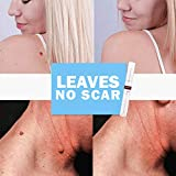 Natural Health Skin Tag Remover 12 Hours Mole