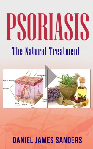 Free life psoriasis ebook free download for