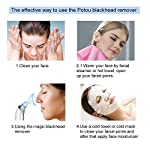 Blackhead Remover Pore Vacuum Extractor Machine Facial Pore Cleanser Electric Suction Black Knight Extraction Face Nose Cleaner Removal Tool (White)