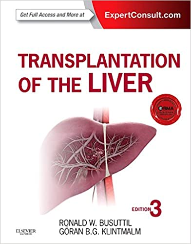 Transplantation of the Liver: 9781455702688: Medicine & Health ...