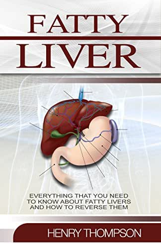 Fatty Liver: The Ultimate Step-by-Step Guide To Understanding and Reversing Fatty Liver Disease (Liver Cleanse, Nutrition, Liver Cleanse, Healthy Living, Revitalise Health, Detox Body, Weight)