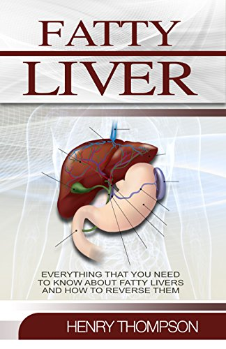 Fatty Liver: The Ultimate Step-by-Step Guide To Understanding and Reversing Fatty Liver Disease (Liver Cleanse, Nutrition, Liver Cleanse, Healthy Living, Revitalise Health, Detox Body, ()