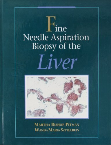 Fine Needle Aspiration Biopsy of the Liver, A Color -