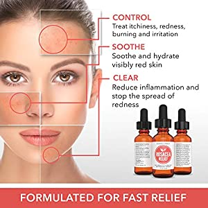 Rosacea Treatment For Face + Skin Redness, Premium 55% Organic Formula, Best Rosacea Natural Treatment, Finest Serum Cream Face Wash, Best Rosacea Relief. Risk Free Offer!