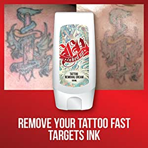 Inked up tattoo removal cream fast working for Tattoo removal cream review