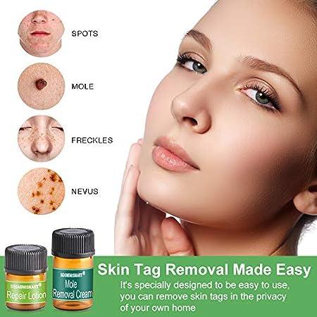Skin Tag Remover, Mole Removal,Manchas Cara Eliminación,Liquid Natural Painless Mole Remover, Eliminación Manchita la Edad, Esputo, Pecas