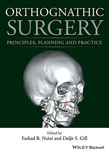 Orthognathic Surgery: Principles, Planning and Practice by Wiley-Blackwell