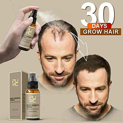 Most Popular Hair Regrowth Treatments
