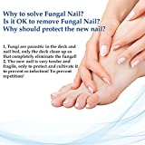 Fungus Stop, Fungus Treatment, Anti Fungus Nail Treatment, Effective Against Nail Fungus, Anti Fungal Nail Solution, Toenails&Fingernails Solution,Removes Yellow from Infected Finger & Toe Nails,2pcs