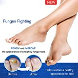 2Pcs Anti Fungal Nail Solution Onychomycosis