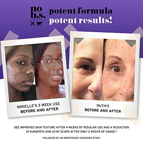 No B.S.Retinol Cream for Face with Hyaluronic Acid and Vitamin E, Retinol Night Cream for Spot Treatment, Vegan Wrinkle Cream and Dark Spot Remover for Face - No B.S. Skin Care