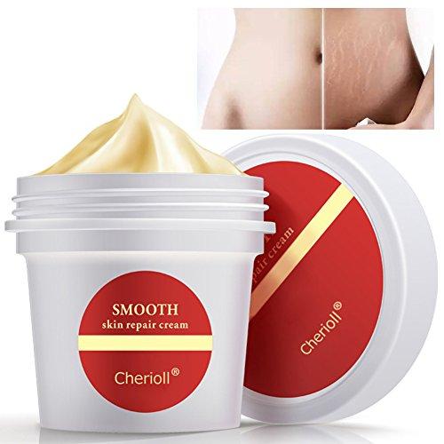 Smooth Skin Cream,Stretch Marks Scar Removal To Maternity Skin Repair Body Cream Remove Scar Care Postpartum