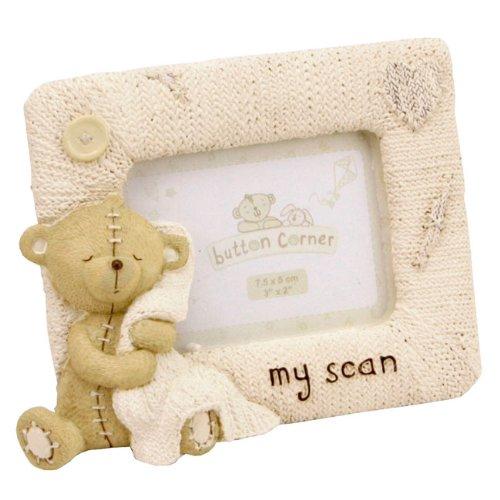 Button Corner Bilderrahmen für Baby Ultraschallbild