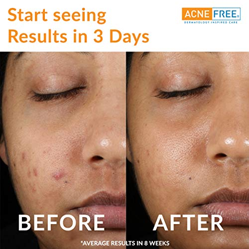 Acne Free 3 Step 24 Hour Acne Treatment Kit - Clearing System w Oil Free Acne Cleanser, Witch Hazel Toner, & Oil Free Acne Lotion - Acne Solution w/ Benzoyl Peroxide for Teens and Adults - Original