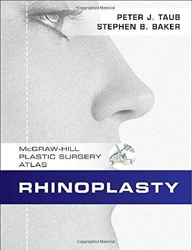 By Peter Taub Rhinoplasty (1st Frist Edition) [Hardcover] ebook