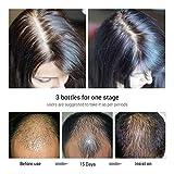 20ml Hair Growth Formula Moisturizing Nourish Scalp Smooth Dry Repair Treatment Hair Care Essence Yiitay