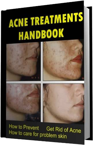 Your Acne Treatments Handbook - How to Prevent, Get Rid of Acne. How to care for problem skin (Acne treatments:How to cure acne 1)