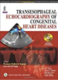 img - for Transesophageal Echocardiography of Congenital Heart Diseases book / textbook / text book