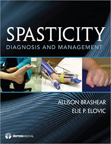 Spasticity: Diagnosis and Management