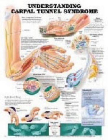 Understanding Carpal Tunnel Syndrome (Teach & ()