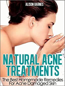 Natural Acne Treatments: Home Remedies For An Acne Cure. Treatment of Teenage Acne, Adult Acne, Acne Scars and Back Acne by [Barnes, Alison]