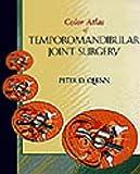 Color Atlas of Temporomandibular Joint Surgery