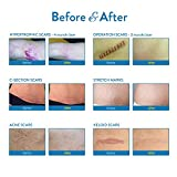 Aroamas Professional Silicone Scar Removal Sheets