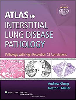 Atlas Of Interstitial Lung Disease Pathology por Andrew Churg epub