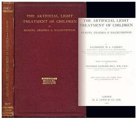 The artificial light treatment of children in rickets, anaemia & malnutrition / [Katherine Mary Lovell Gamgee]