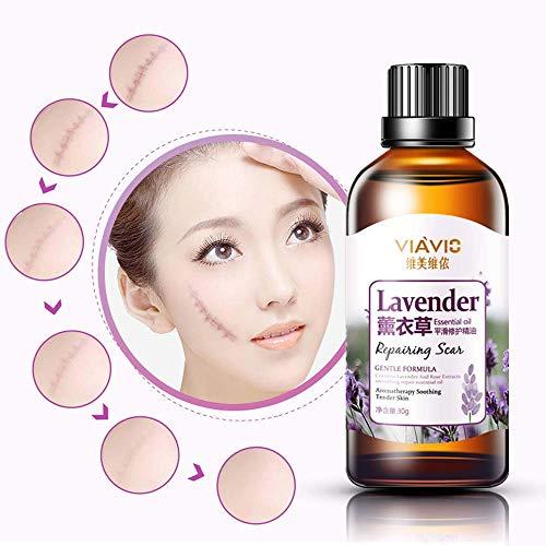 Amazon Discount For Yakuin Acne Scar Treatment Lavender Oil