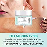 St. Mege Scar Repair Cream - For Adults - New and