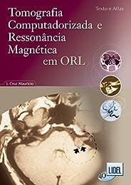 Tomografia Computadorizada e Ressonância Magnética em ORL