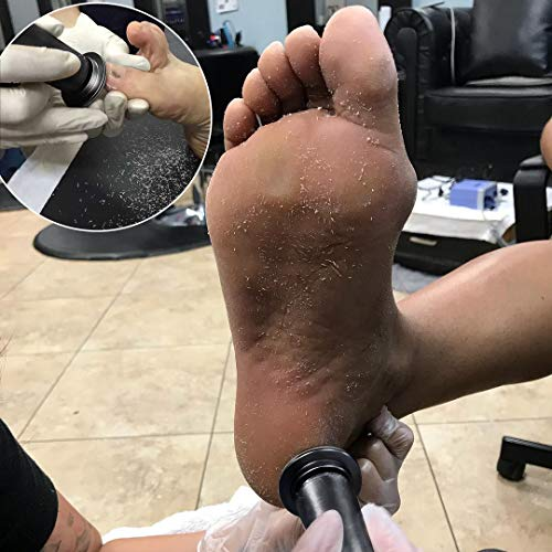 Upgraded Electronic Foot File (Speed Adjustable) with Replacement Sandpaper Discs - Professional Electric Foot Callus Removal Pedicure Tool Fast Remove Callous Dry Dead Skin (Black) by I.B.N (Image #2)
