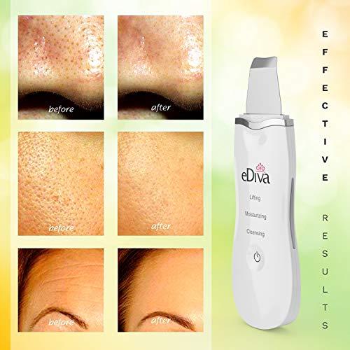eDIVA Riino Skin Scrubber Review