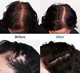 Theradome EVO LH40 Hair Growth Helmet - Premium