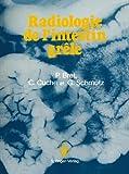 Radiologie de l'intestin Grele, Bret, P., 2287000011