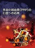 多血小板血漿〈PRP〉の口腔への応用