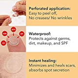 Rael Acne Pimple Healing Patch - Absorbing