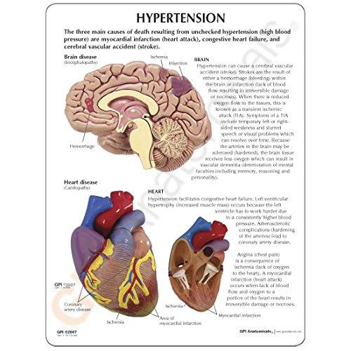 Hypertension Organ Model Set by Anatomical Chart Company (Image #7)